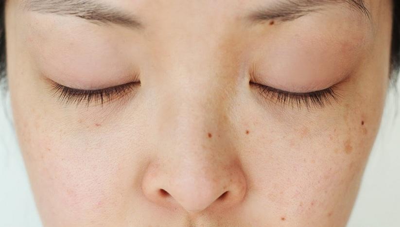 Flek Hitam Di Wajah Bisa Dihilangkan Dengan Jeruk Limau