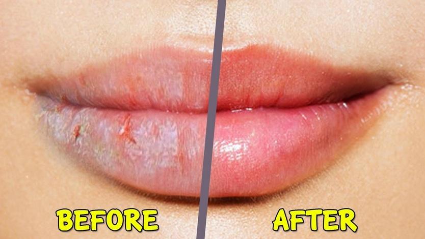 Mengatasi Bibir Pecah-Pecah dengan Lemon